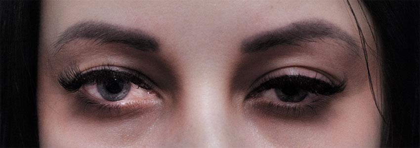 Глаза наркомана. Крупно - белки глаз, зрачек, веки
