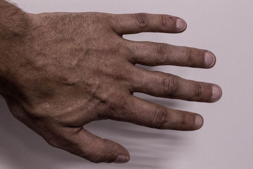 Кожа на руках наркомана. Крупно - кисти рук, пальцы, язвы
