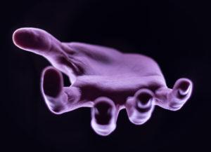 Рука мефедронового наркомана